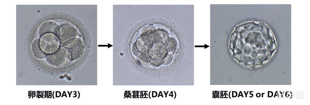 都快移植了,还不懂胚胎?快看过来!插图