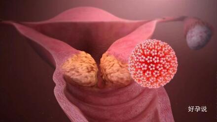 世界首次发现!宫颈癌能通过分娩转移给宝宝!插图5