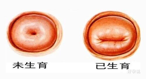 如果我不说,医生能否发现我增加打过胎?插图2