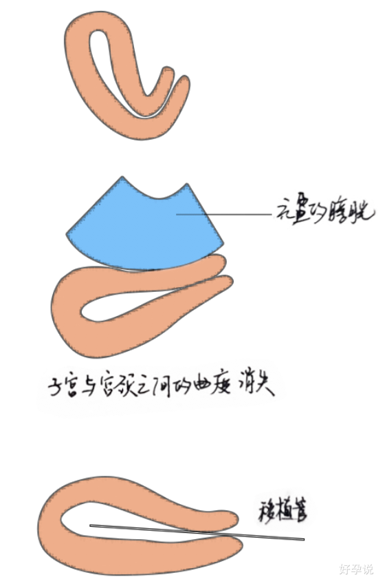 胚胎移植的时候为什么要憋尿?插图2
