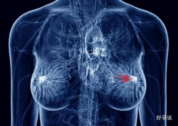 好好的乳腺,为啥就增生了?会癌变吗?插图2