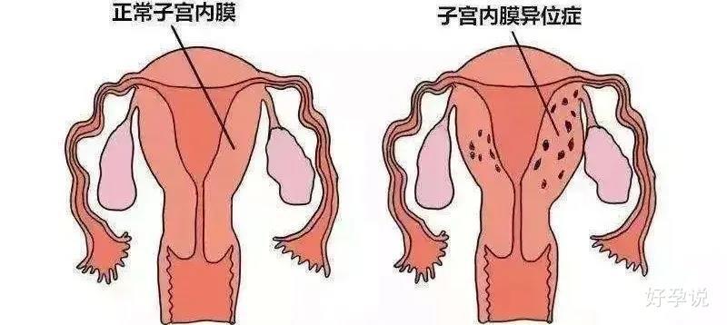 子宫内膜异位症术后要打针吗?插图