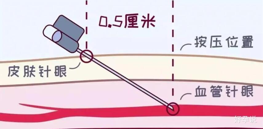 """抽完血后,鼓起的""""大包""""到底是个啥?插图1"""