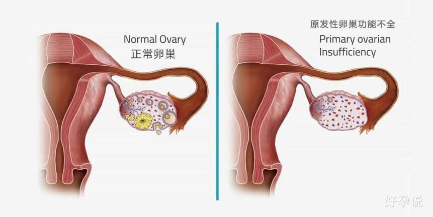 30岁的女人,50岁的卵巢,还有救吗?插图2